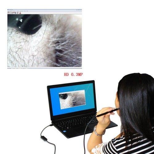 2-in-1 USB Ear Cleaning Endoscope HD Visual Ear Spoon Multifunctional Earpick